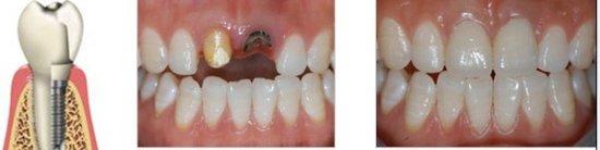兰州崔大夫医疗美容诊所种植牙的适应症