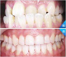 兰州崔大夫医疗美容诊所隐形牙齿矫正术的适应症