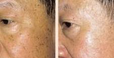 甘肃省干部医疗保健院复合彩光祛斑的优势