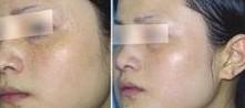 兰州亚韩医学整形美容彩光祛斑的术后护理