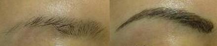 兰州亚韩医学整形美容眉毛种植的术后护理
