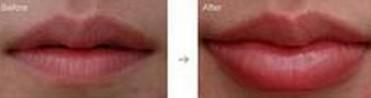 兰州亚韩医学整形美容自体脂肪丰唇的价格