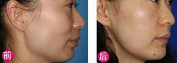 兰州亚韩医学整形美容韩式改脸型的优势