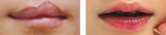 兰州亚韩医学整形美容唇缺损修复的术前注意事项