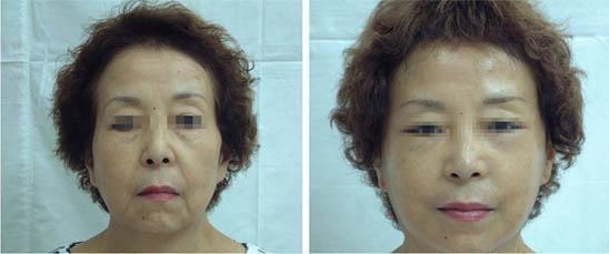 兰州韩美整形美容医院面部悬吊术的并发症