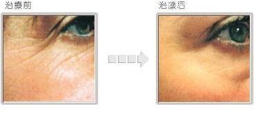 兰州韩美整形美容医院生物除皱术的术后护理