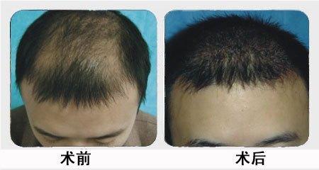 兰州崔大夫医疗美容诊所头发种植术的特点