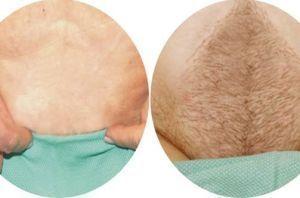 兰州崔大夫医疗美容诊所阴毛种植术的特点