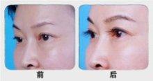 兰州崔大夫医疗美容诊所睫毛种植术的术后护理