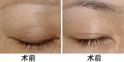 兰州崔大夫医疗美容诊所眉毛种植术的适应症