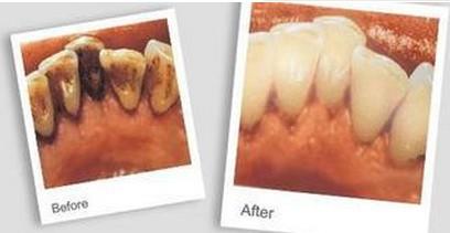 兰州美丽达医学门诊洗牙的过程主要有哪些呢