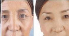 兰州崔大夫医疗美容诊所爱贝芙除皱术的术后注意