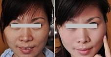 兰州亚韩医学整形美容美白针的优势