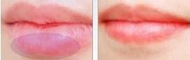 兰州厚唇变薄术对比图