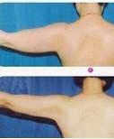 兰州韩美整形美容医院臂部抽脂术的注意事项