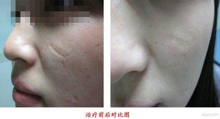 兰州韩美整形美容医院激光疤痕修复的术后护理