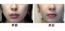 兰州崔大夫医疗美容诊所厚唇修薄术的注意事项