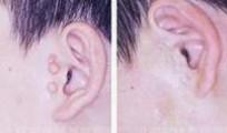 兰州亚韩医学整形美容副耳切除的注意事项