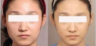 兰州宝黛美容诊所瘦脸针让人感觉痛不痛呢