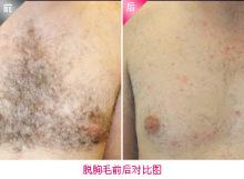 榆林医专附属医院激光脱胸毛的术后护理