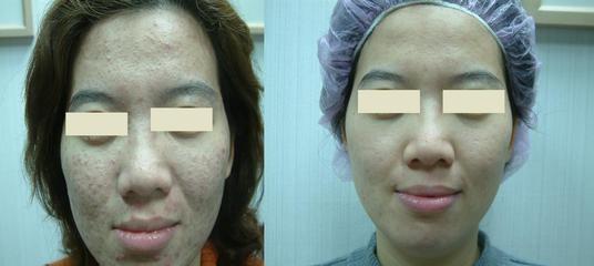 兰州韩美整形美容医院彩光嫩肤的适应症