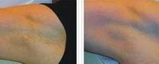 兰州亚韩医学整形美容激光去腋臭的优势