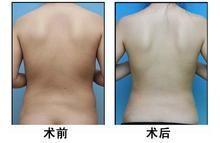 兰州崔大夫医疗美容诊所背部吸脂术的适应症