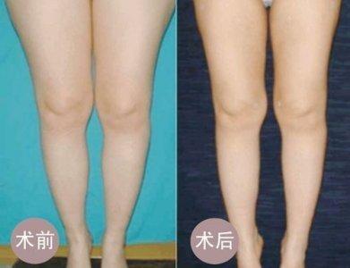 兰州崔大夫医疗美容诊所腿部吸脂术的术后护理