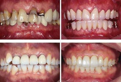 兰州韩美整形美容医院种植牙的禁忌症
