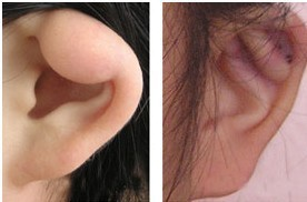 兰州韩美整形美容医院菜花耳整形术的术后护理
