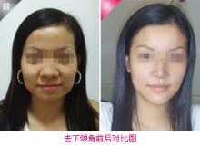 兰州崔大夫医疗美容诊所下颌角整形术的术后特点