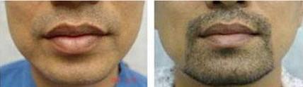 兰州绣医疗美容诊所胡须移植的护理包括什么