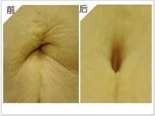 兰州韩美整形美容医院脐部整形术的术后特点