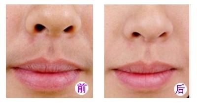兰州崔大夫医疗美容诊所激光脱唇毛的特点
