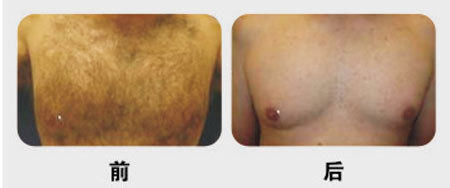 兰州崔大夫医疗美容诊所激光脱胸毛的术后护理