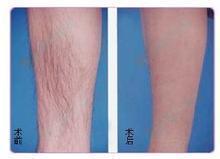 兰州崔大夫医疗美容诊所激光脱腿毛的术后护理