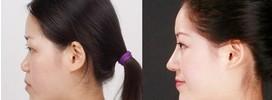 兰州金城医疗美容玻尿酸注射隆鼻的术后护理