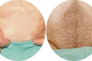 兰州韩美整形美容医院阴毛种植术的适应症