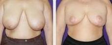 兰州长青佳黛医疗美容乳房上提术的优势