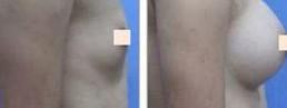兰州自体脂肪隆胸的对比图
