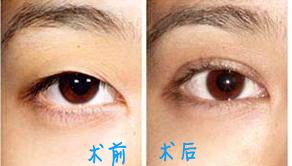 兰州崔大夫医疗美容诊所微创割双眼皮手术的术后护理