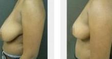 兰州长青佳黛医疗美容巨乳缩小的术后护理
