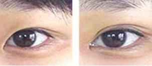 兰州崔大夫医疗美容诊所眼角开大术的禁忌症