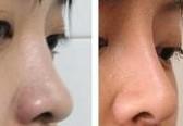 兰州假体隆鼻的对比图