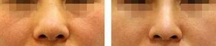 兰州鼻翼缩小的对比图