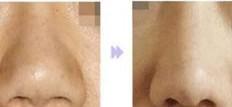 兰州芦蔓莉美医疗美容鼻小柱整形的优势