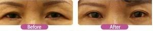 兰州崔大夫医疗美容诊所上睑皮肤松弛矫正术的恢复时间
