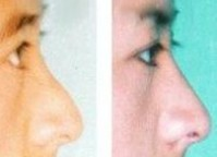 兰州芦蔓莉美医疗美容鹰钩鼻矫正的术后注意事项
