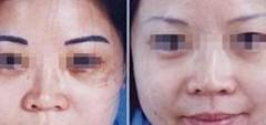 兰州韩美整形美容医院激光洗眉的特点
