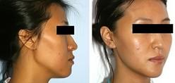 兰州长青佳黛医疗美容下颌角整形的术后护理